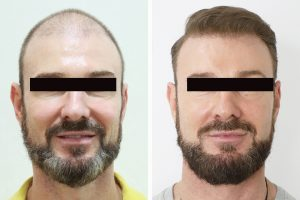 factors which determine cost of hair transplants in Turkey