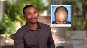 Bosley Hair Transplanst Gone Wrong My Hair Implants