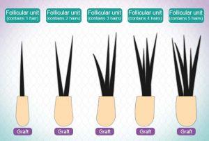 hair graft cost turkey