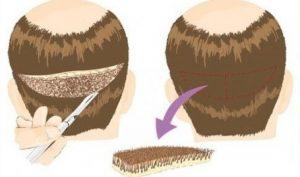 FUT BLACK HAIR