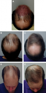 donor area hair transplant