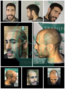 sule hair transplant before and after pictures