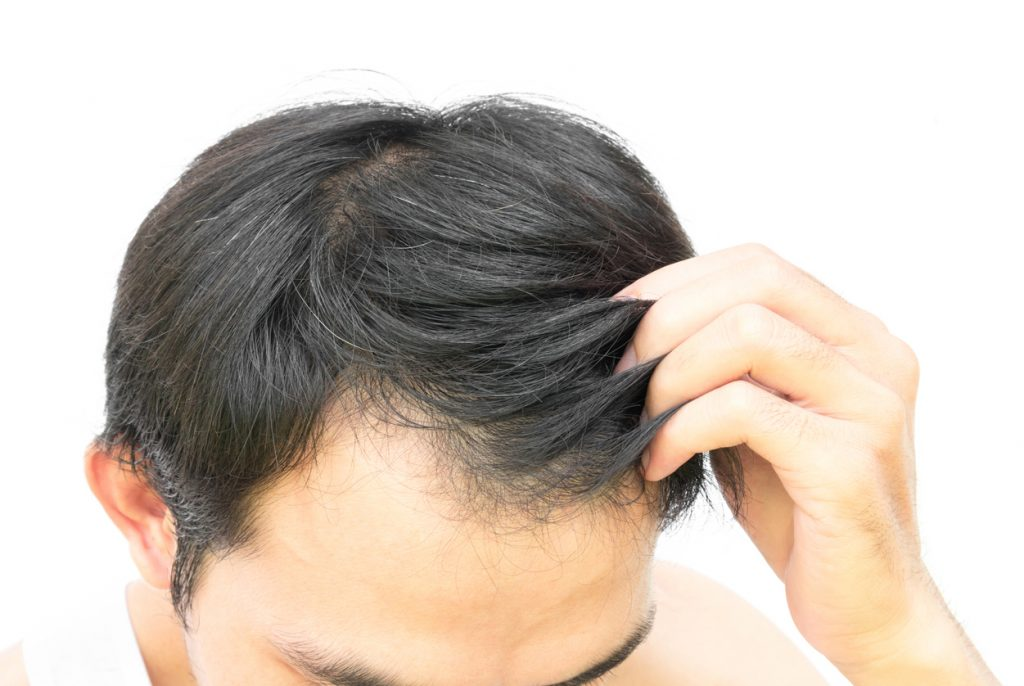 factors that mke hair transplants expensive