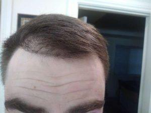 hair transplant shock loss