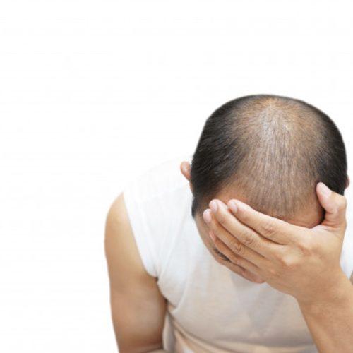 are hair transplants worth it?